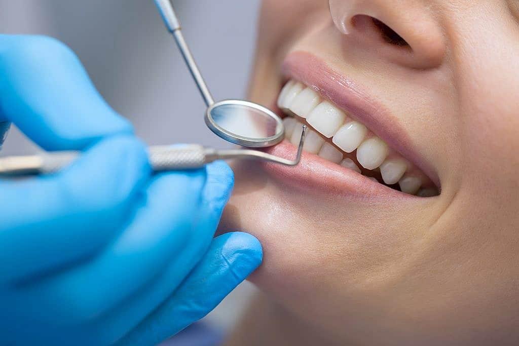 Teeth Bonding Park Avenue Dental Gainesville FL